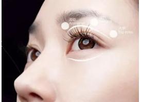 上海做双眼皮成效怎么样