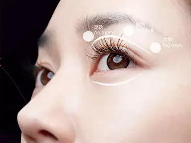 上海做双眼皮效果怎么样