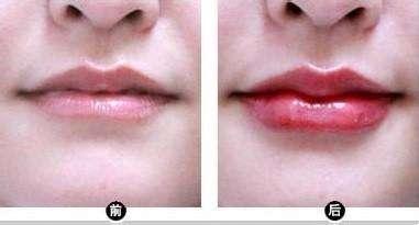 玻尿酸丰唇效果
