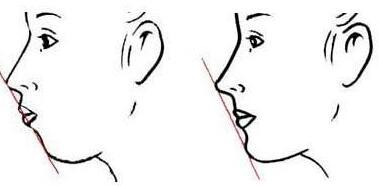 丰下巴整形有哪些方法
