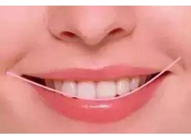 5个牙齿美白的小方法