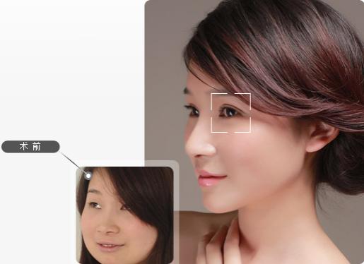上海美莱割双眼皮一般多少钱