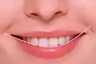 冷光美白牙齿术后护理事项