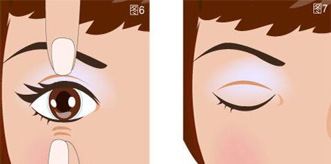 双眼皮加开眼角多少钱
