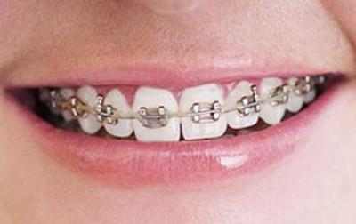 钢丝牙矫正