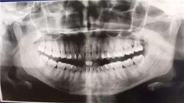 牙齿矫正拍片
