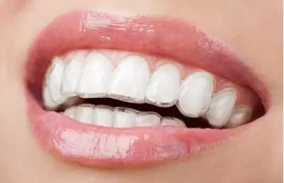 隐适美牙齿矫正