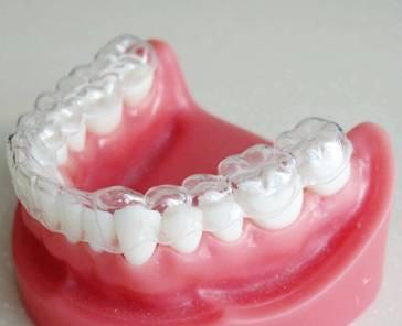 牙齿矫正保持器