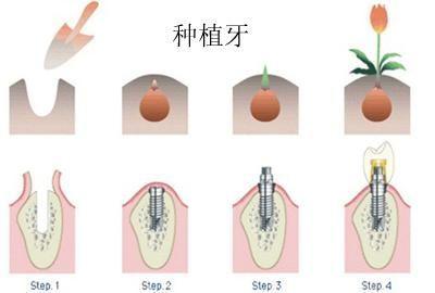 种植牙or烤瓷牙