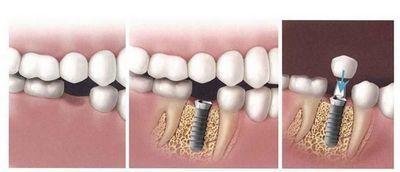 种植牙只需要在种植体上安装烤瓷冠即可完成修复