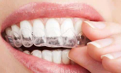 牙齿矫正术后注意事项