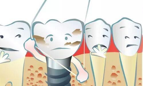 牙线清洁牙齿