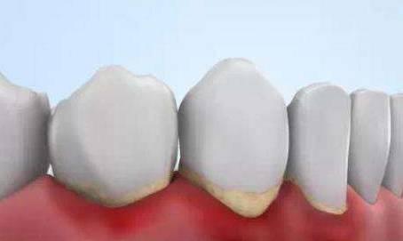 什么样的牙齿需要洗牙