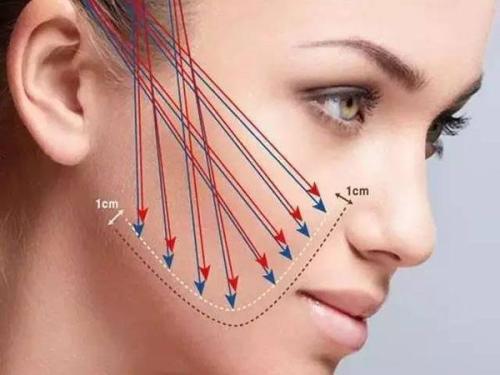 面部线雕的效果
