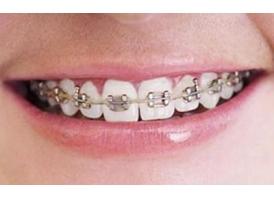 美容冠牙齿矫正成效好不好