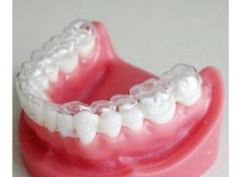 牙齿矫正有哪些好处