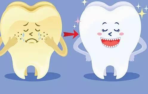 怎么样可以美白牙齿