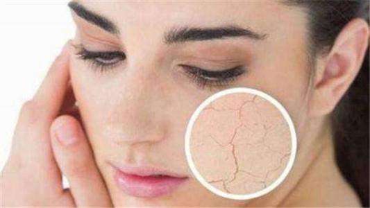 皮肤干燥如何补水