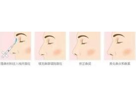 上海美莱注射隆鼻有哪些