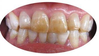 牙齿黄怎么美白