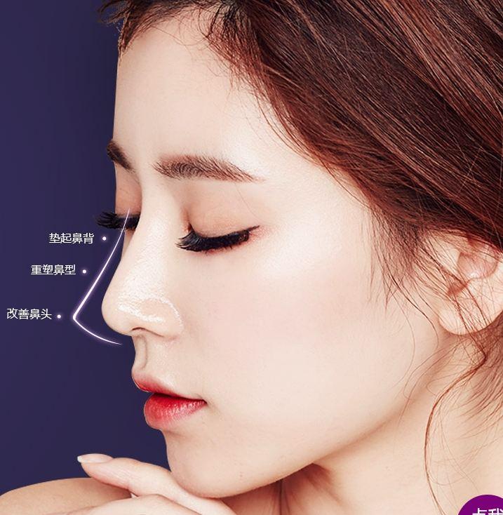 上海美莱鼻孔整形好不好