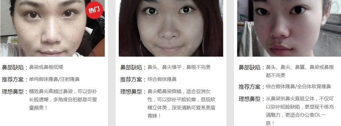 上海美莱需要做假体隆鼻