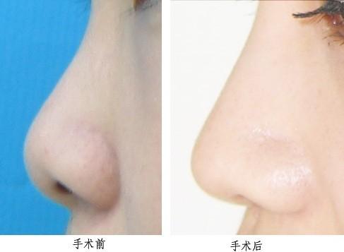 上海美莱鼻尖整形