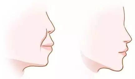 龅牙(牙齿前突)