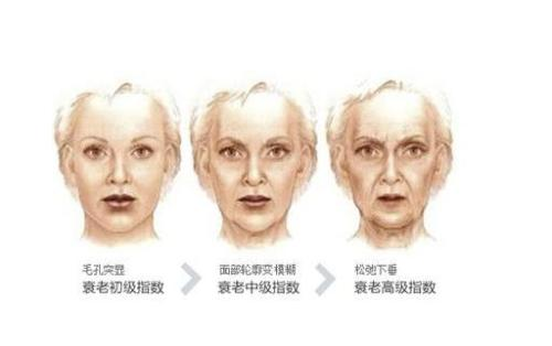 怎么抗皮肤衰老