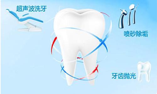 去除牙结石,当然是选择美莱洗牙了!