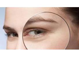 眼部的鱼尾纹怎么去除