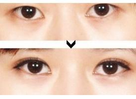 上海割双眼皮手术医院多少钱