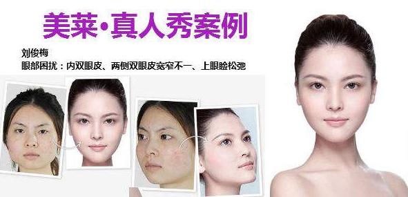 上海美莱割双眼皮案例