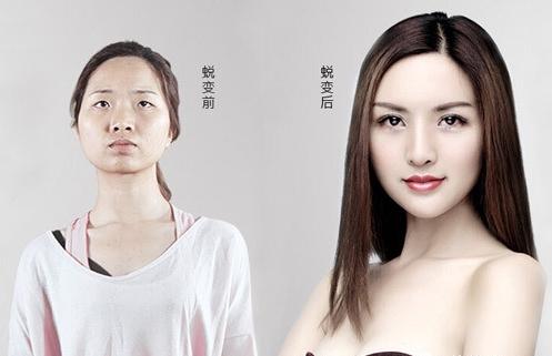 上海美莱隆鼻恢复过程图