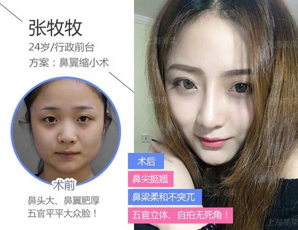 上海美莱隆鼻恢复