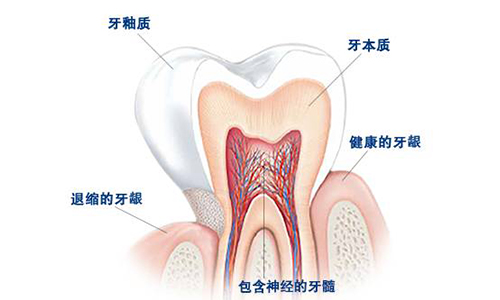牙齿敏感是因为你没有定期洗牙