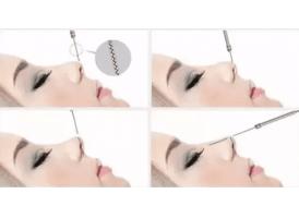 线雕隆鼻多久可以恢复