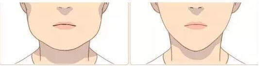 哪些人不适合打瘦脸针