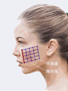 上海美莱面部去皱方法