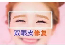 上海双眼皮失败修复价格一般是多少