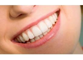 牙贴面美白牙齿效果好吗