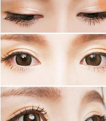 上海美莱做双眼皮效果怎么样