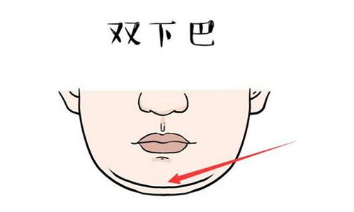 双下巴怎么减肥