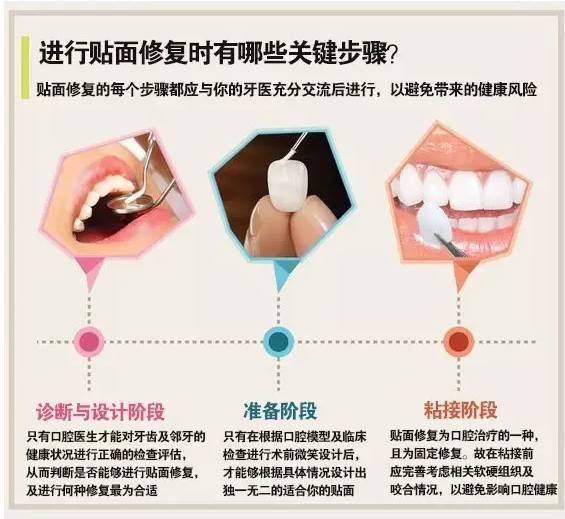 牙贴面美白牙齿有效果吗