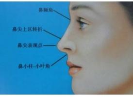 上海鼻小柱延长术好不好