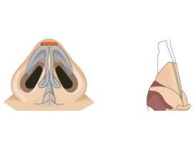 上海耳软骨垫鼻尖多少钱
