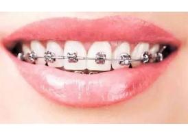 矫正牙齿那个医院比较好