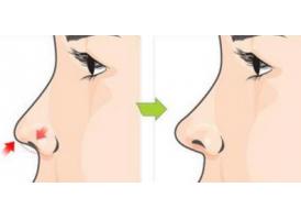 上海鼻综合修复成效怎么样