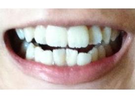 成年人牙齿矫正需要多少时间