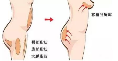 上海脂肪丰胸技术怎么样